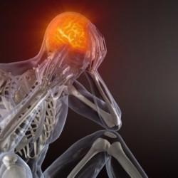 cerveau-douleur-migraine_sn635